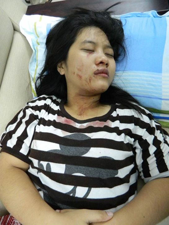 Sai Gon Thao Chi in hospital 060513