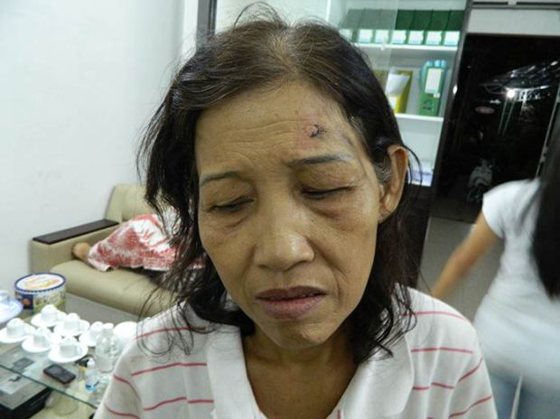 Saigon Nguyen Thi Cuc in hospital 060513