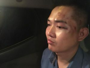 Nguyen Tin head injury Source FB Duong Dai Trieu Lam 180816