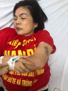 Injured protester 11.15.18_Facebook Ho Dan Day So Nha Le Duong De La Thanh